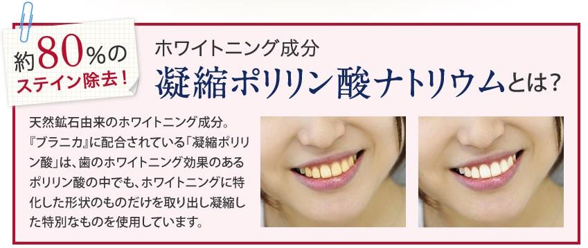 ブラニカの口コミ・効果を紹介!ホワイトニング歯磨きジェル『ブラニカ』で綺麗な歯を手に入れよう!